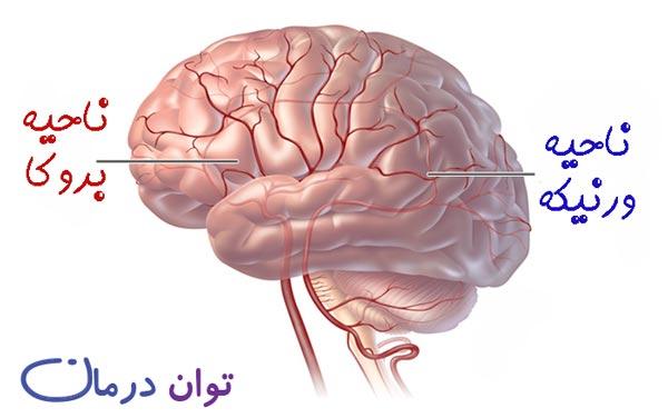 نواحی مغز در آفازی