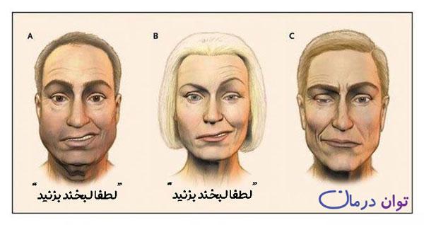 فلج صورت (علائم، علت و درمان) | توان درمان