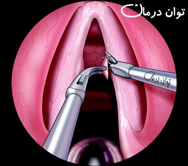 جراحی ندول تار صوتی