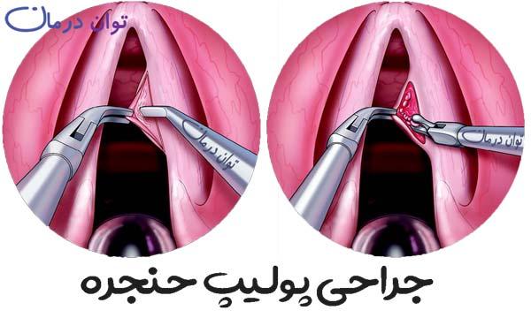 جراحی پولیپ گردن مرحله سوم