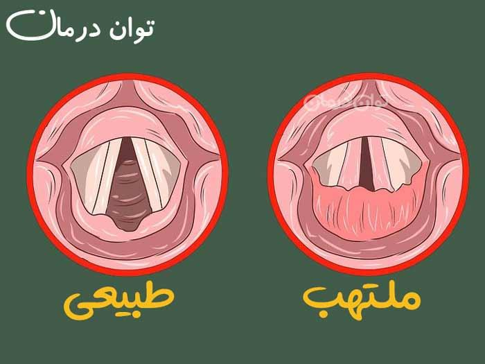 التهاب حنجره