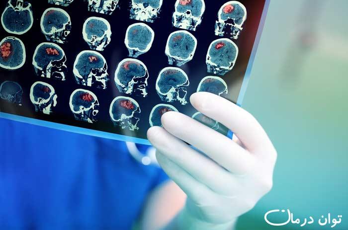 تشخیص سکته مغزی