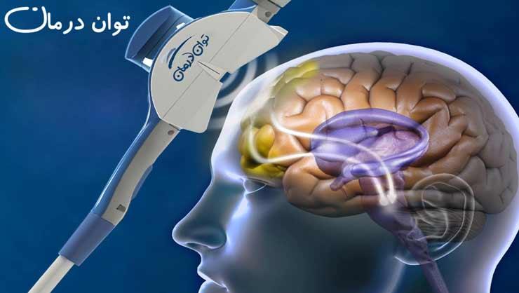 تحریک الکتریکی مغز در درمان افسردگی