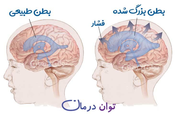 هیدروسفالی یا آب آوردن مغز چیست؟