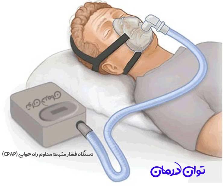 دستگاه فشار مثبت مداوم راه هوایی (CPAP)